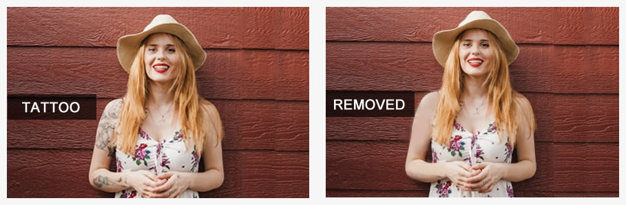 'Before' photo of girl wearing sundress and sun hat with an arm tattoo, and 'After' photo of the same girl without arm tattoo.